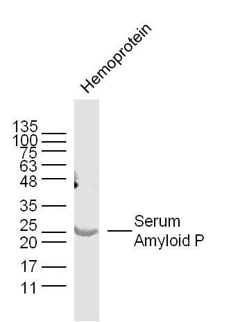 Serum Amyloid P antibody