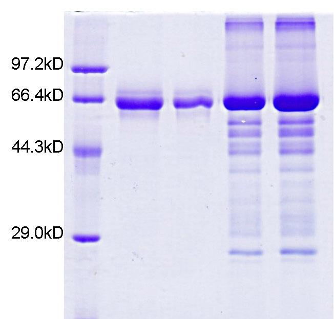 ZSCAN21重组蛋白表达