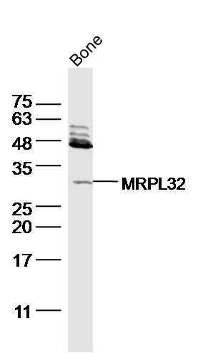 FGF23 antibody