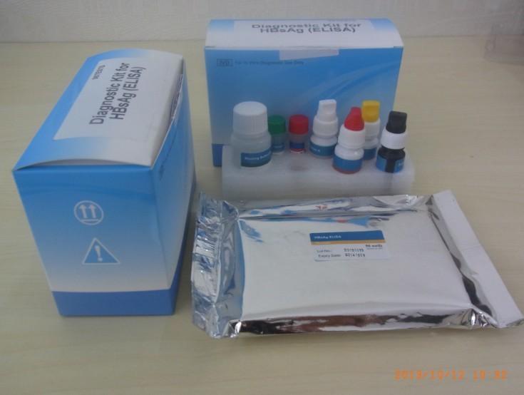 人tox抗体IgM检测试剂盒