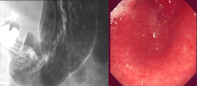 治好浅表性缓慢胃炎的方法 缓慢胃炎医治的正确打开方法,速来围观!