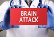 多发性脑梗需警惕:「滚动」的栓子