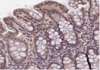 G蛋白偶联胆汁酸受体1