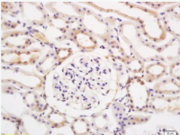 蛋白酶体PSMD3抗体