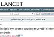 Lancet:双侧颈内动脉血栓形成是怎么回事