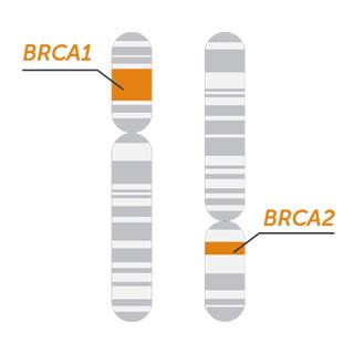BRCA MASTR Plus 生殖系和体细胞变异二代测序基因组合