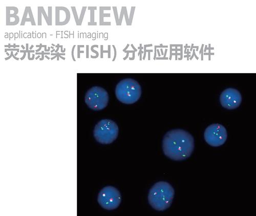 ASI 染色体核型分析应用软件-HiBand