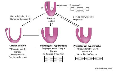 心肌肥厚(hypertrophy)模型构建服务