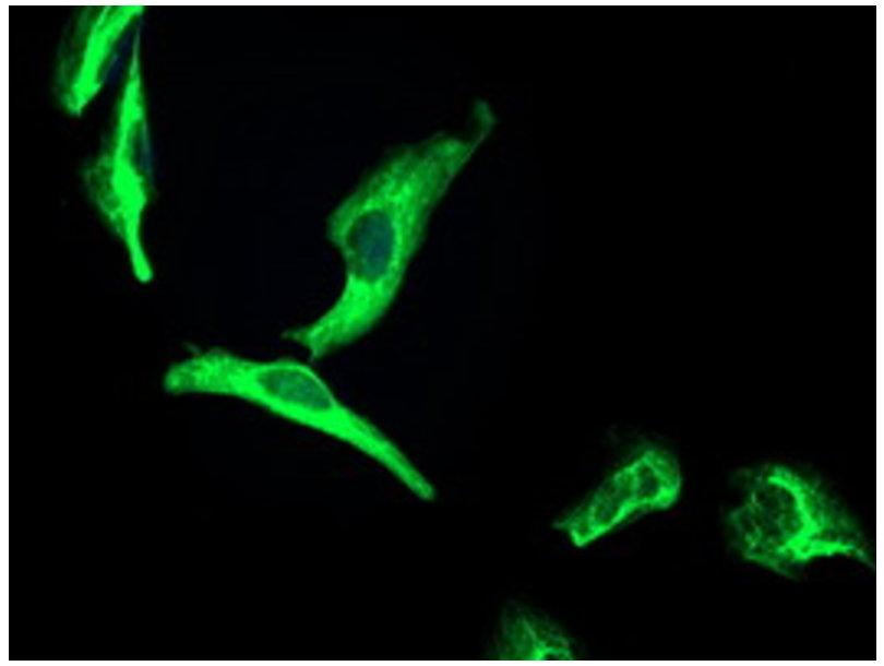 端粒酶调节相关蛋白抗体