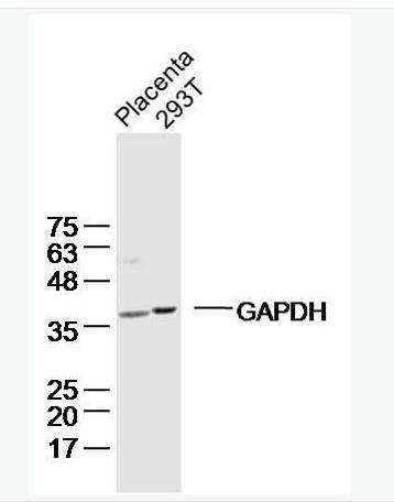 细胞表面趋化因子受体7抗体CCR7