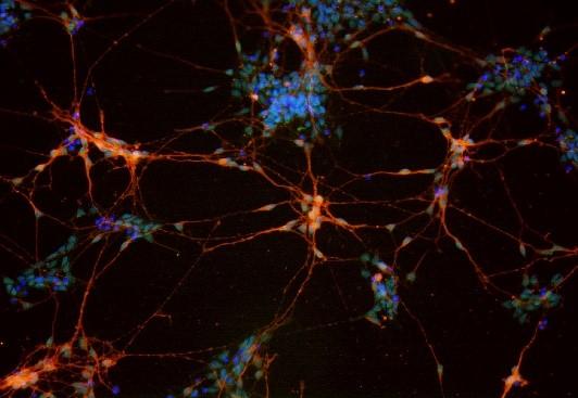 成体细胞诱导服务(包括但不仅限于神经元)