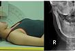 放射医师:一款优秀的影像设备这两大要素不可缺