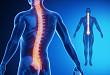 可逆性脊髓空洞,如此病因你见过么?