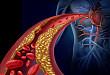 Medscape 精选   房颤和经皮冠状动脉介入术
