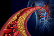 Medscape 精选 | 房颤和经皮冠状动脉介入术