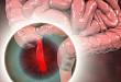儿童继发性阑尾炎的超声特征