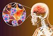 Medscape 精选   神经系统免疫介导不良反应的治疗