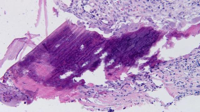 皮肤骨2瘤.jpg