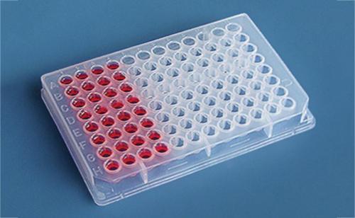 人抗Ku抗体(anti-Ku-Ab)检测试剂盒