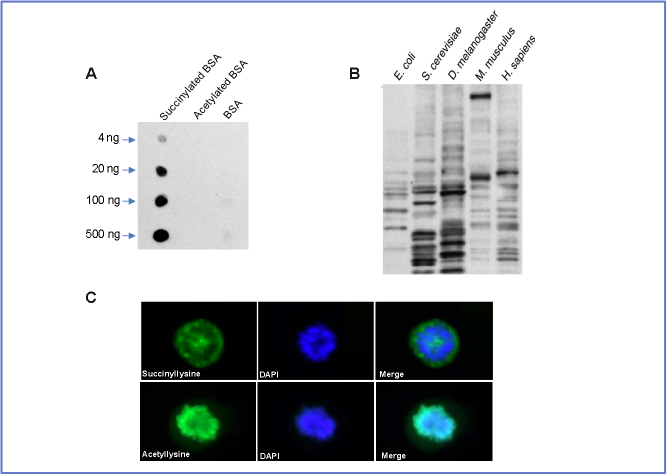 高通量定量蛋白质组学