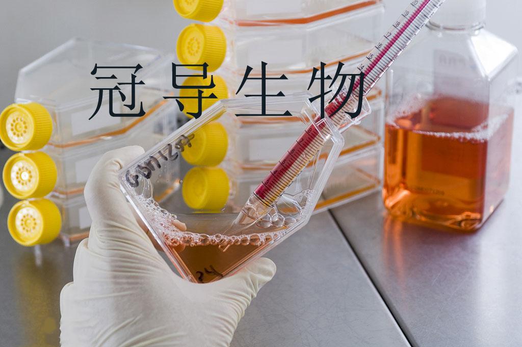 SP2/0{小鼠骨髓瘤细胞}