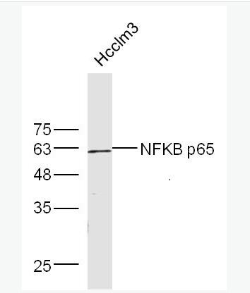 骨成型蛋白受体1A抗体