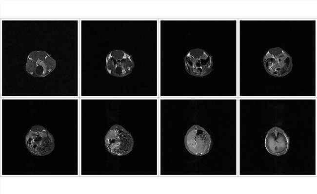 核磁共振(MRI)
