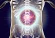 替加环素诱发肾移植患者急性胰腺炎一例