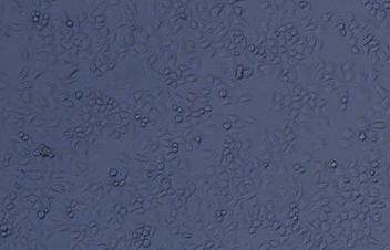 AB2.2  小鼠胚胎干细胞