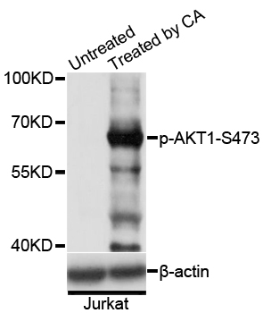 Anti-Phospho-AKT1-S473 pAb