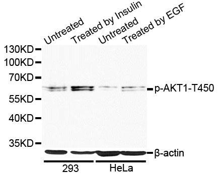Anti-Phospho-AKT1-T450 pAb