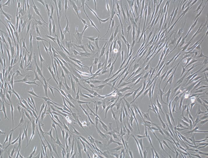 人脐带间充质干细胞