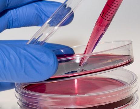 DT40鸡淋巴瘤细胞/ATCC专业引进/免费STR鉴定