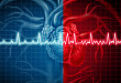 Medscape 精选 | 心脏病学数据:关注心房颤动