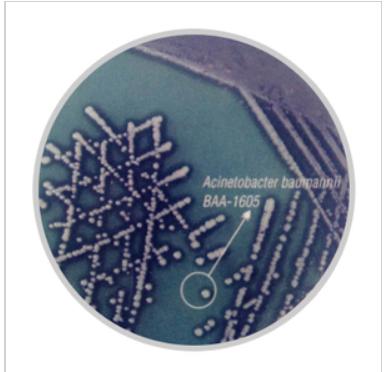 不动杆菌显色培养基