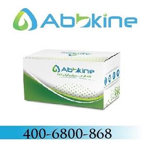 TraKine™ F-actin染色试剂盒 (绿色荧光) TraKine™ F-actin Staining Kit (Green Fluorescence)