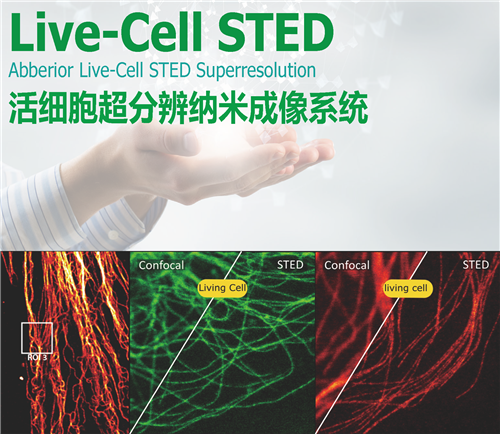 Abberior Live-Cell STED 活细胞超分辨成像系统