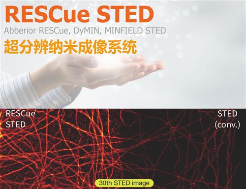 RESCue STED 活细胞超高分辨影像系统