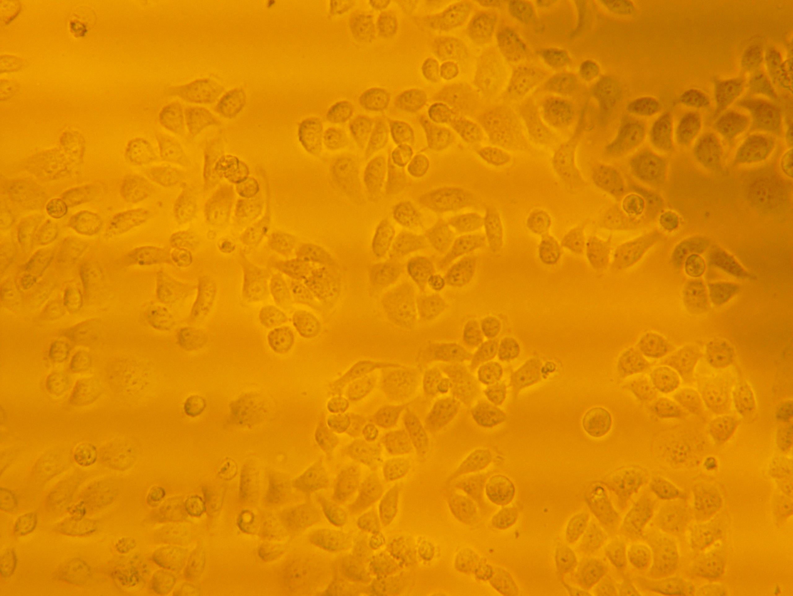 人结肠癌荧光素酶细胞