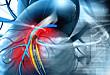 Medscape 精选 | 静脉血栓栓塞的临床试验和困境