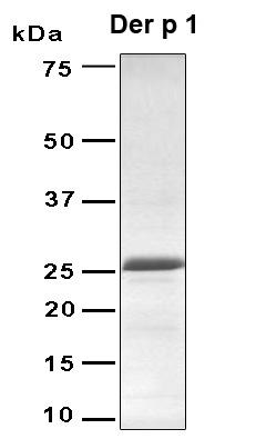 CORO1B  Antibody