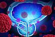 2018 年 AUA 指南:去势抵抗性前列腺癌的合理治疗