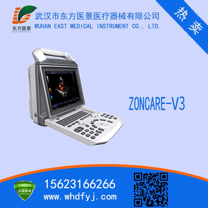 便携式彩超仪V3 全数字彩色多普勒超声诊断系统