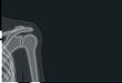 冻结肩:超声测量腋囊厚度更有价值