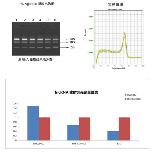 LncRNA实时荧光定量PCR检测