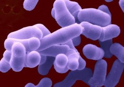 浅黄色芽胞八叠球菌费用