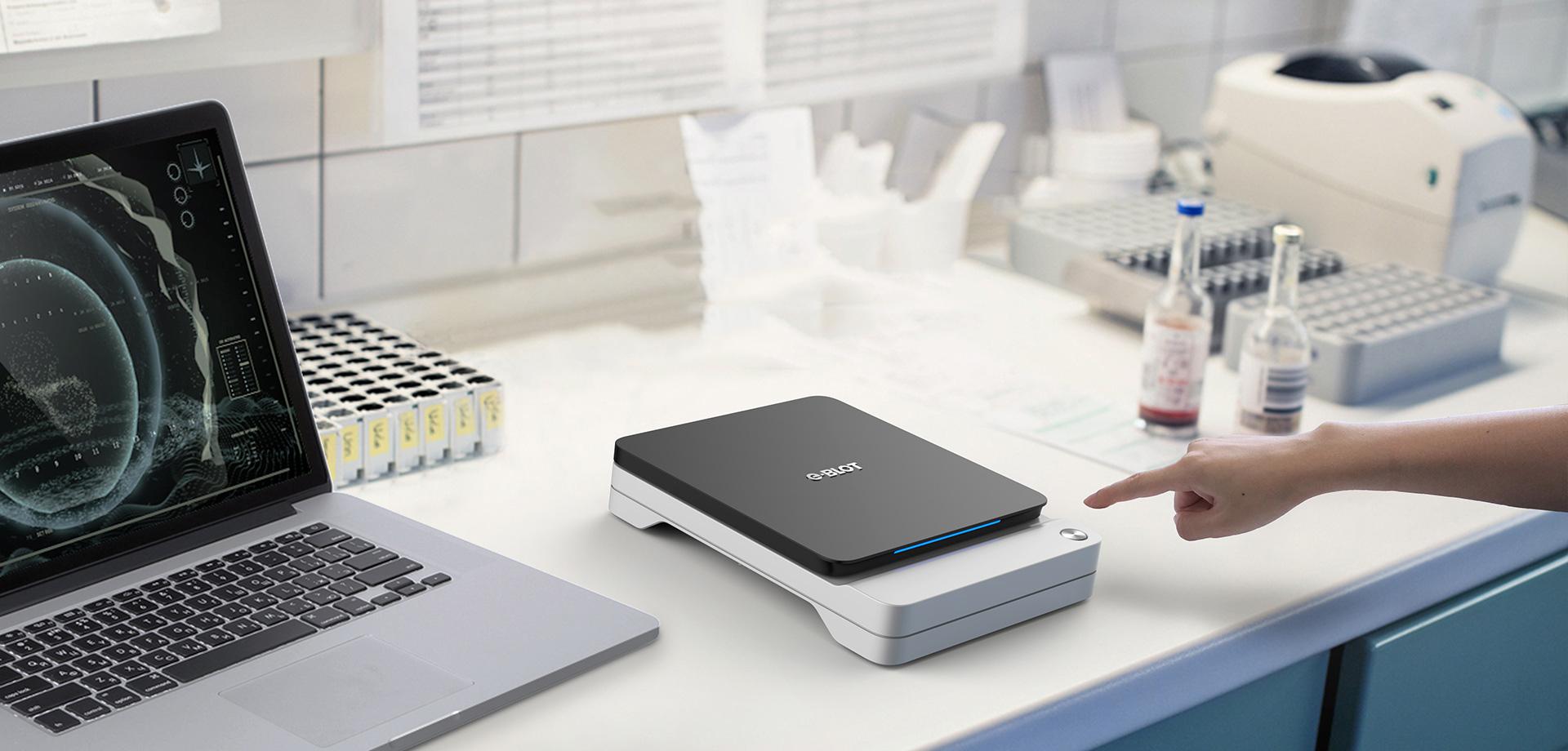 E-blot仪,Western blot成像仪中的Iphone X