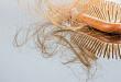 临床综述:4 种副肿瘤性脱发
