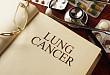 肿瘤笔记-肿瘤医生关于肺癌的应知应会