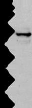 Anti-KRT15 antibody